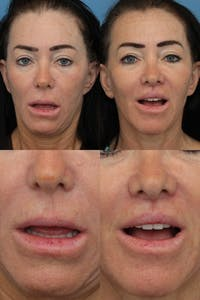 Lip Lift Gallery - Patient 2161911 - Image 1