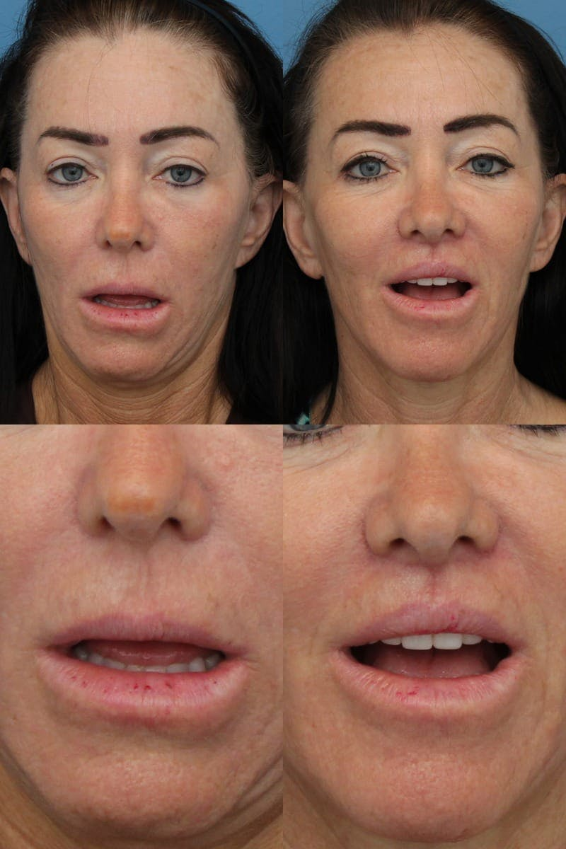 Lip Lift Gallery - Patient 2161911 - Image 1