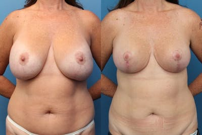 Liposuction Gallery - Patient 2161913 - Image 1