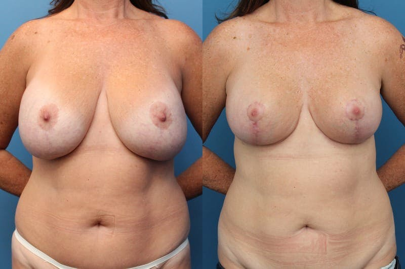 Liposuction: Female Gallery - Patient 2394705 - Image 1
