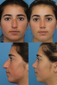 Rhinoplasty Gallery - Patient 2162051 - Image 1