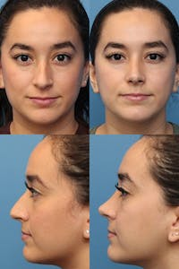 Rhinoplasty Gallery - Patient 2162052 - Image 1