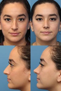 Rhinoplasty Gallery - Patient 2388176 - Image 1