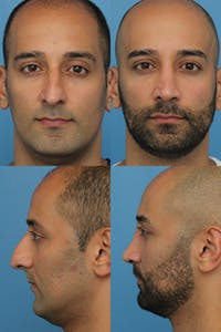 Rhinoplasty Gallery - Patient 2162053 - Image 1