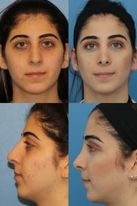 Rhinoplasty Gallery - Patient 2162054 - Image 1