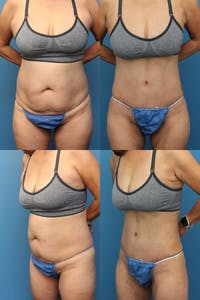 Tummy Tuck Gallery - Patient 2162062 - Image 1