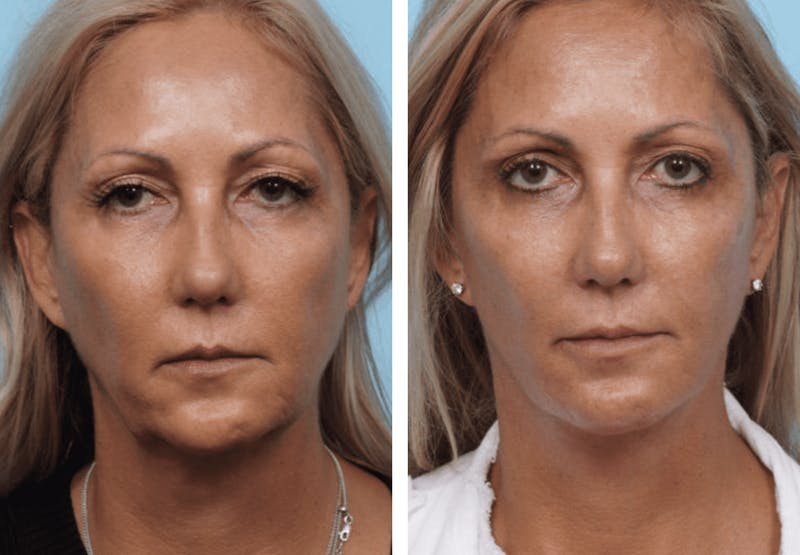 Dr. Balikian's Facelift Gallery - Patient 2167261 - Image 1