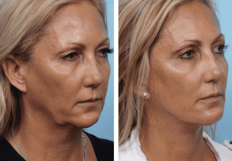 Dr. Balikian's Facelift Gallery - Patient 2167261 - Image 2