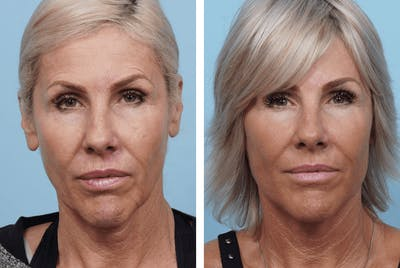 Dr. Balikian's Facelift Gallery - Patient 2167283 - Image 1