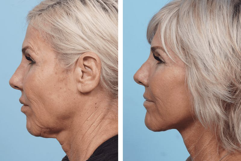 Dr. Balikian's Facelift Gallery - Patient 2167283 - Image 2