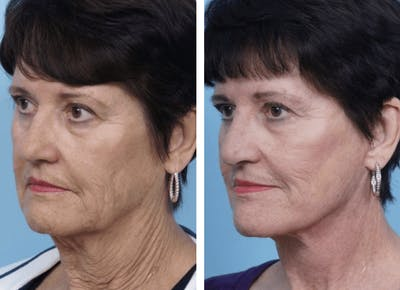 Dr. Balikian's Facelift Gallery - Patient 2167286 - Image 1