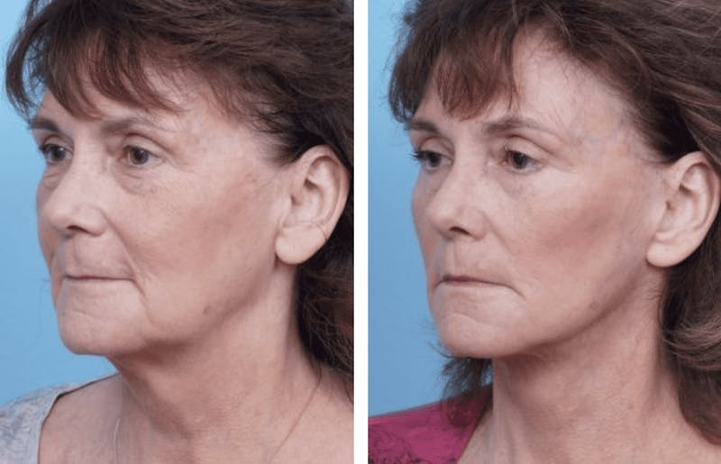 Dr. Balikian's Facelift Gallery - Patient 2167289 - Image 1