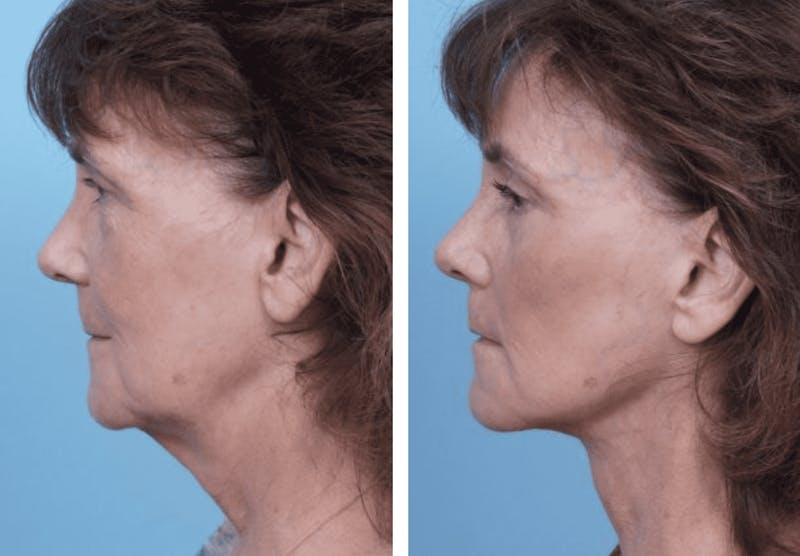 Dr. Balikian's Facelift Gallery - Patient 2167289 - Image 2