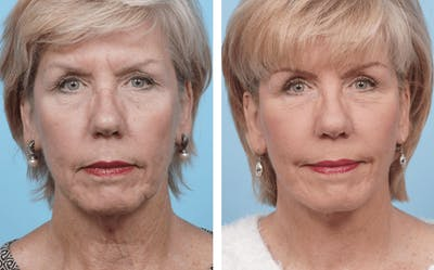 Dr. Balikian's Facelift Gallery - Patient 2167294 - Image 1