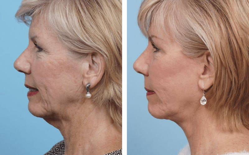 Dr. Balikian's Facelift Gallery - Patient 2167294 - Image 2