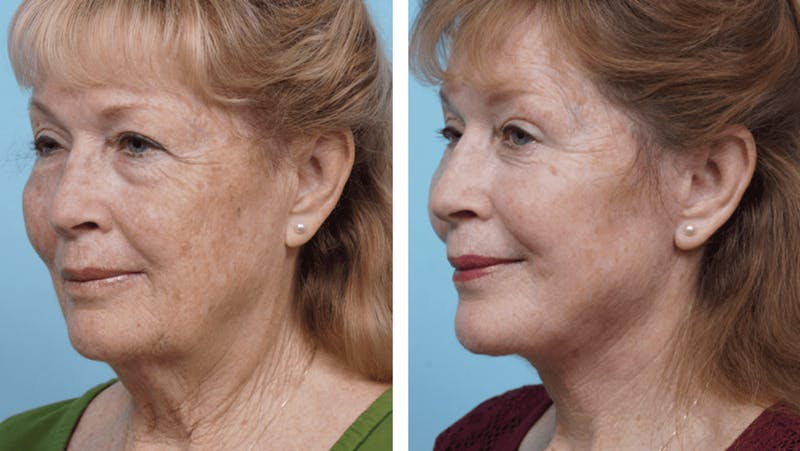 Dr. Balikian's Facelift Gallery - Patient 2167296 - Image 1