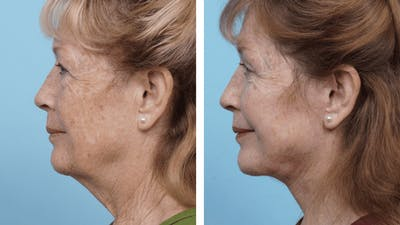 Dr. Balikian's Facelift Gallery - Patient 2167296 - Image 2