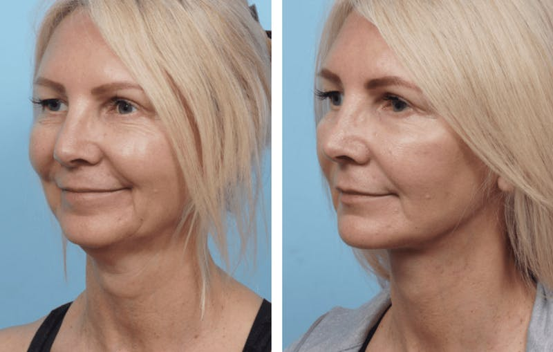 Dr. Balikian's Facelift Gallery - Patient 2167300 - Image 1