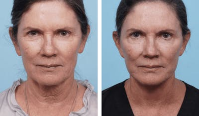 Dr. Balikian's Facelift Gallery - Patient 2167303 - Image 1