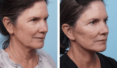 Dr. Balikian's Facelift Gallery - Patient 2167303 - Image 2