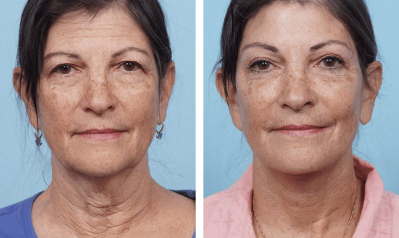 Dr. Balikian's Facelift Gallery - Patient 2167305 - Image 1