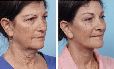 Dr. Balikian's Facelift Gallery - Patient 2167305 - Image 2