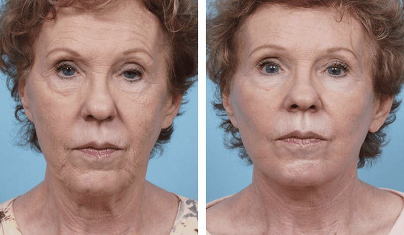 Dr. Balikian's Facelift Gallery - Patient 2167308 - Image 1