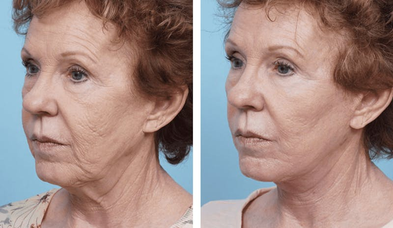 Dr. Balikian's Facelift Gallery - Patient 2167308 - Image 2