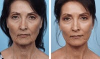 Dr. Balikian's Facelift Gallery - Patient 2167311 - Image 1