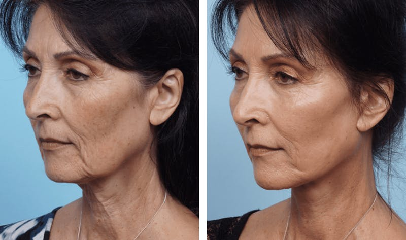 Dr. Balikian's Facelift Gallery - Patient 2167311 - Image 2