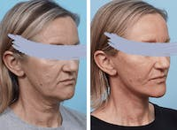 Dr. Balikian's Facelift Gallery - Patient 2167314 - Image 1