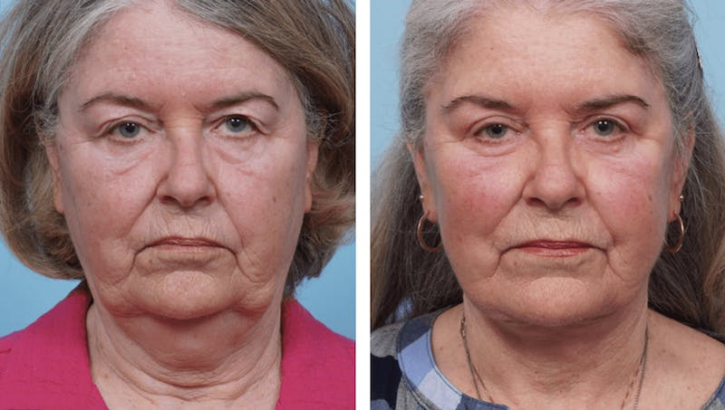 Dr. Balikian's Facelift Gallery - Patient 2167318 - Image 1