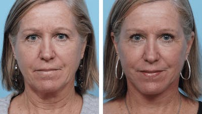 Dr. Balikian's Facelift Gallery - Patient 2167324 - Image 1