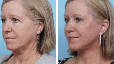 Dr. Balikian's Facelift Gallery - Patient 2167324 - Image 2
