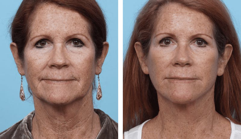 Dr. Balikian's Facelift Gallery - Patient 2167330 - Image 1