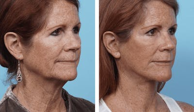 Dr. Balikian's Facelift Gallery - Patient 2167330 - Image 2