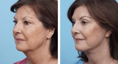 Dr. Balikian's Facelift Gallery - Patient 2167333 - Image 1