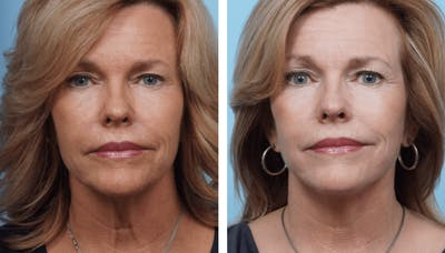 Dr. Balikian's Facelift Gallery - Patient 2167335 - Image 1