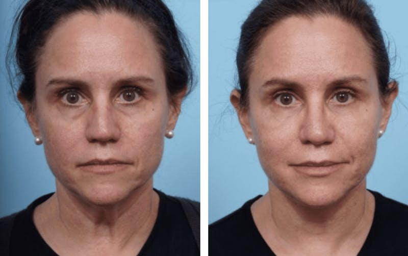 Dr. Balikian's Facelift Gallery - Patient 2167338 - Image 1