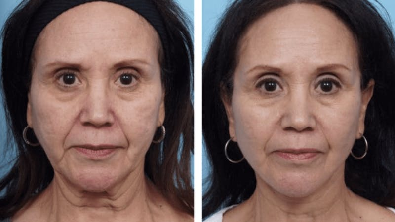 Dr. Balikian's Facelift Gallery - Patient 2167342 - Image 1