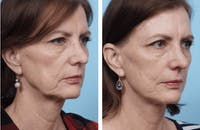 Dr. Balikian's Facelift Gallery - Patient 2167350 - Image 1