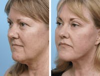 Dr. Balikian's Facelift Gallery - Patient 2167353 - Image 1