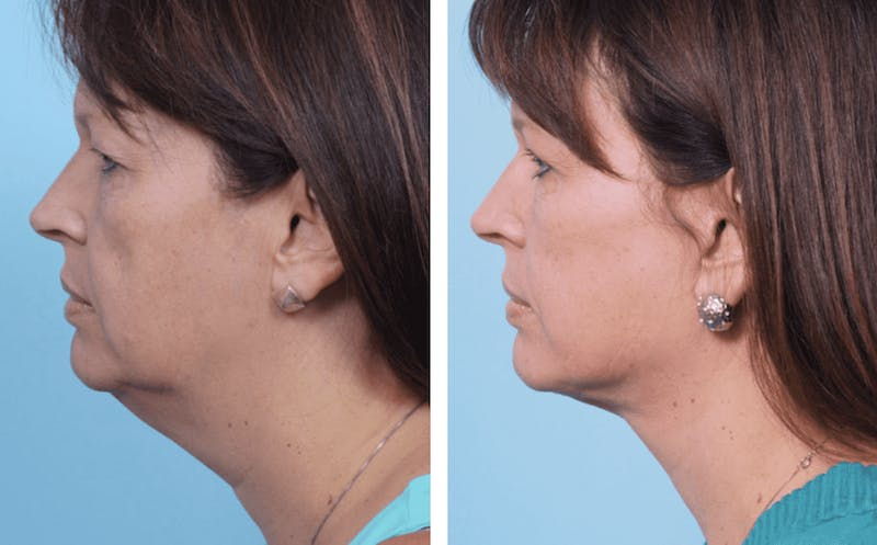 Dr. Balikian's Facelift Gallery - Patient 2167357 - Image 1