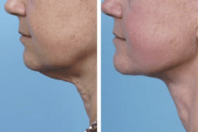 Dr. Balikian's Facelift Gallery - Patient 2167360 - Image 1