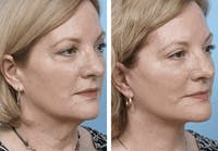 Dr. Balikian's Facelift Gallery - Patient 2167367 - Image 1