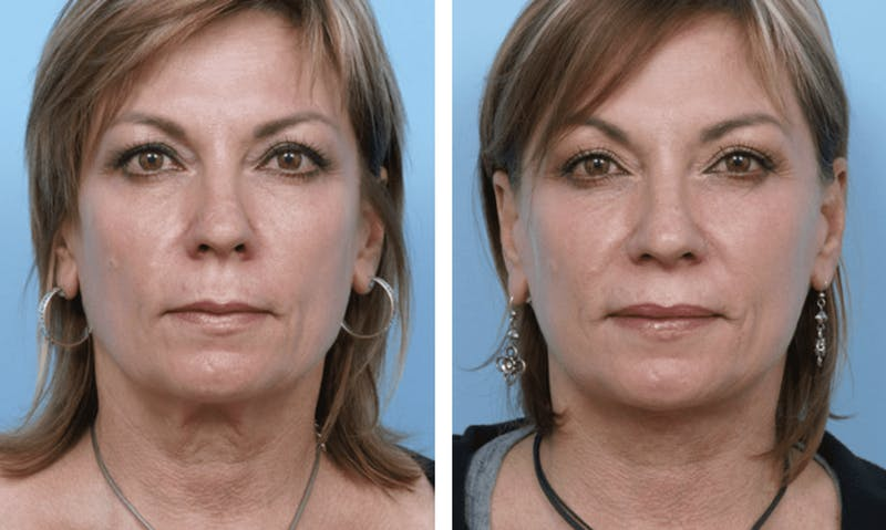 Dr. Balikian's Facelift Gallery - Patient 2167369 - Image 1