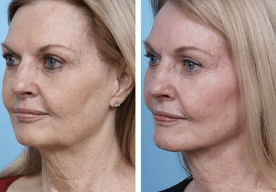 Dr. Balikian's Facelift Gallery - Patient 2167371 - Image 1