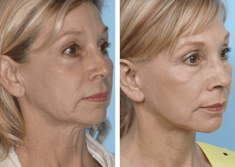 Dr. Balikian's Facelift Gallery - Patient 2167373 - Image 1
