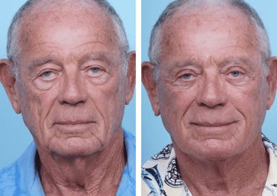 Dr. Balikian's Facelift Gallery - Patient 2167375 - Image 1