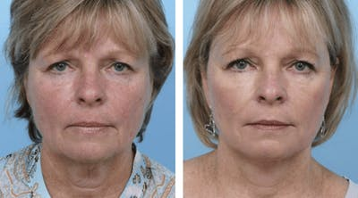 Dr. Balikian's Facelift Gallery - Patient 2167391 - Image 1